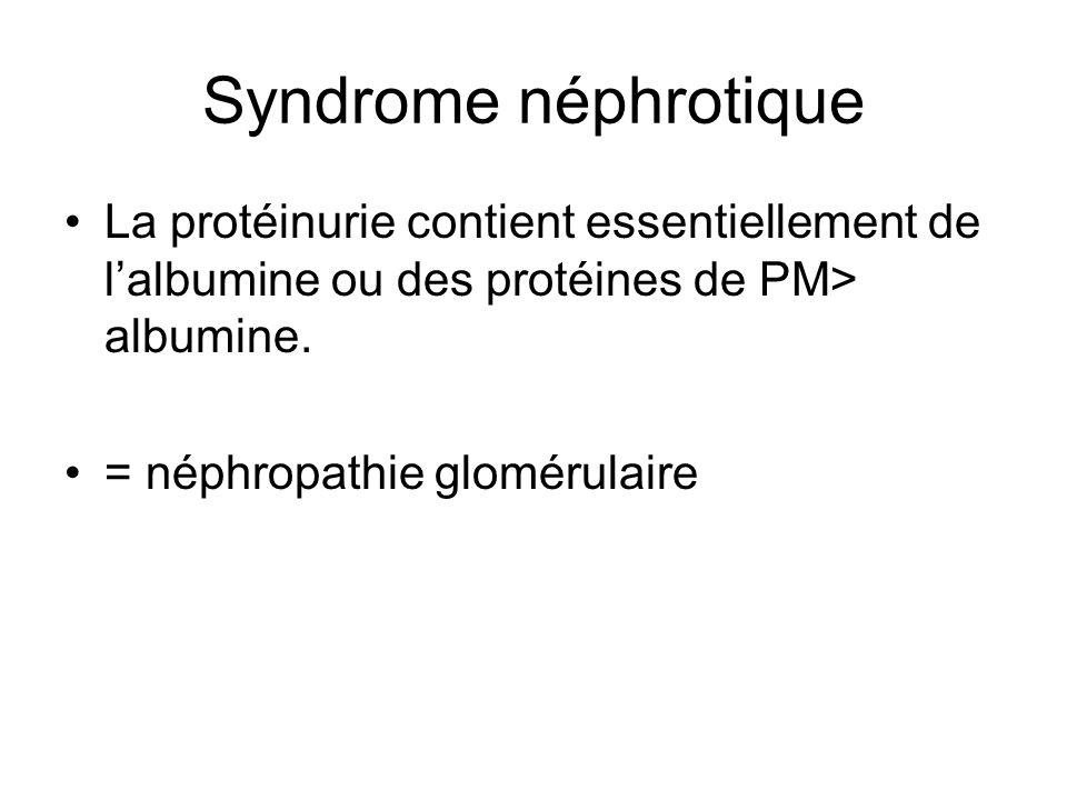 Syndrome néphrotique La protéinurie contient essentiellement de lalbumine ou des protéines de PM> albumine. = néphropathie glomérulaire