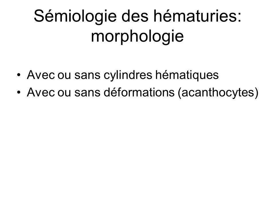 Sémiologie des hématuries: morphologie Avec ou sans cylindres hématiques Avec ou sans déformations (acanthocytes)