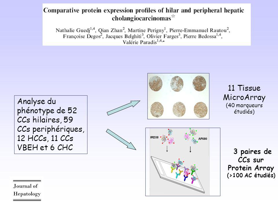 Analyse du phénotype de 52 CCs hilaires, 59 CCs periphériques, 12 HCCs, 11 CCs VBEH et 6 CHC 11 Tissue MicroArray (40 marqueurs étudiés) 3 paires de CCs sur Protein Array (>100 AC étudiés)