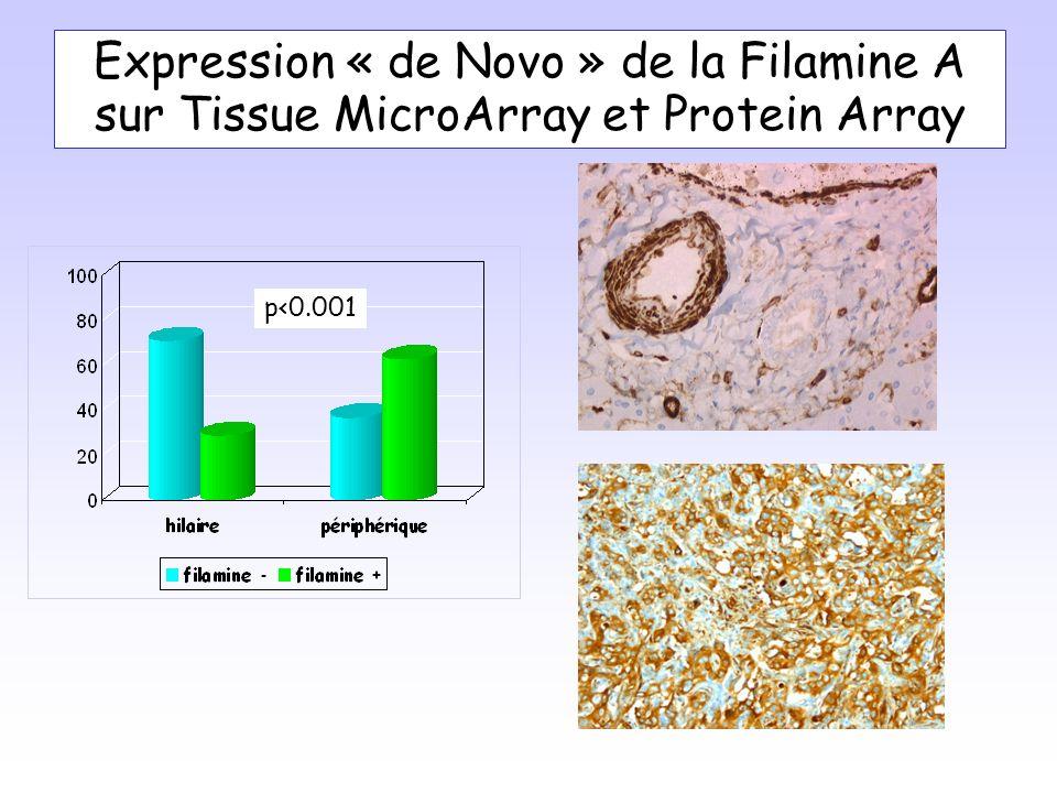 Expression « de Novo » de la Filamine A sur Tissue MicroArray et Protein Array p<0.001