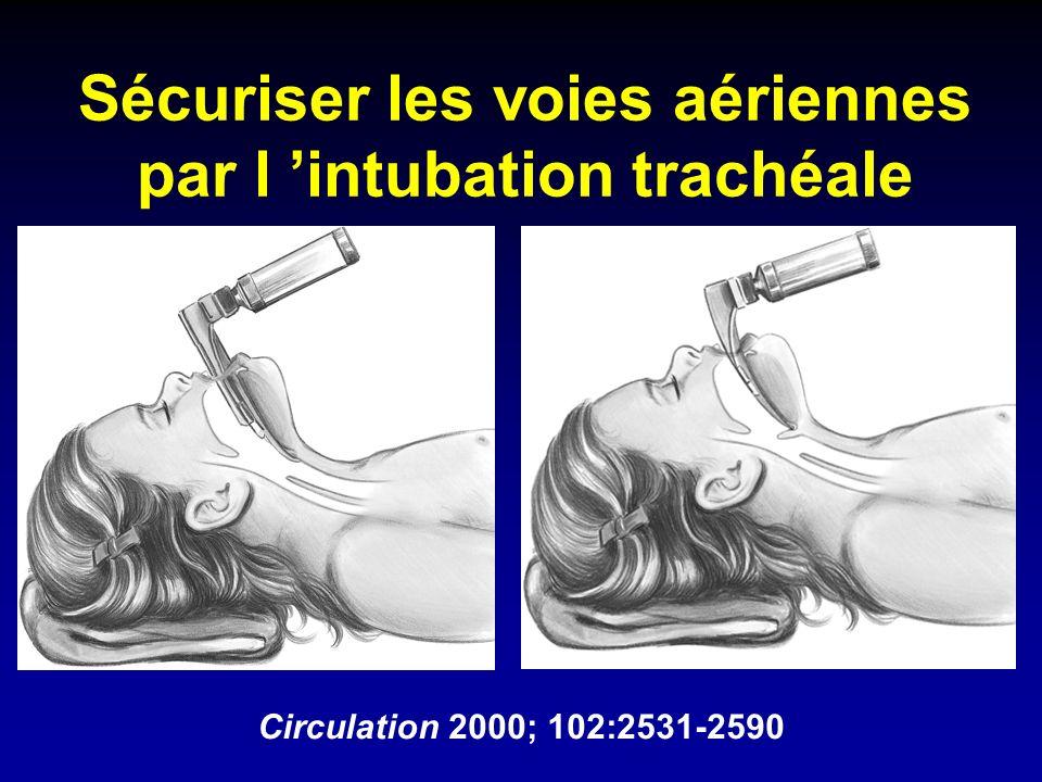 Sécuriser les voies aériennes par l intubation trachéale Circulation 2000; 102:2531-2590
