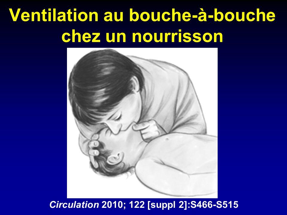 Ventilation au bouche-à-bouche chez un nourrisson Circulation 2010; 122 [suppl 2]:S466-S515