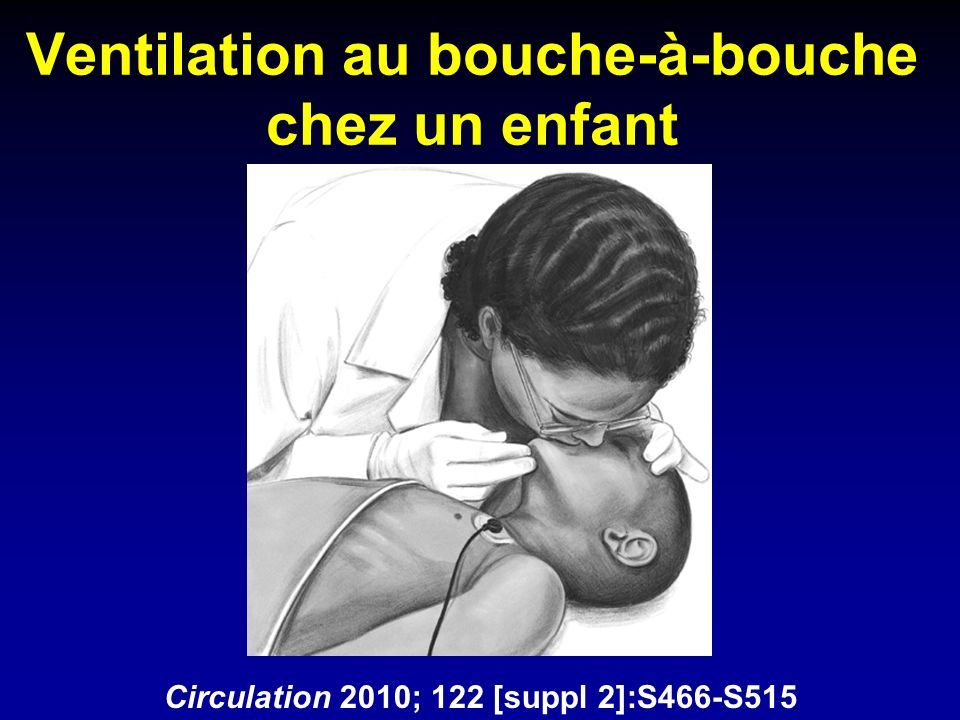 Réanimation du nouveau-né en salle de naissance Circulation 2010; 122 [suppl 2]:S516-S538 Airway (CPAP vs intubation) Breathing (surfactant) Circulation (high rate) Drugs (adrénaline) Organ Function