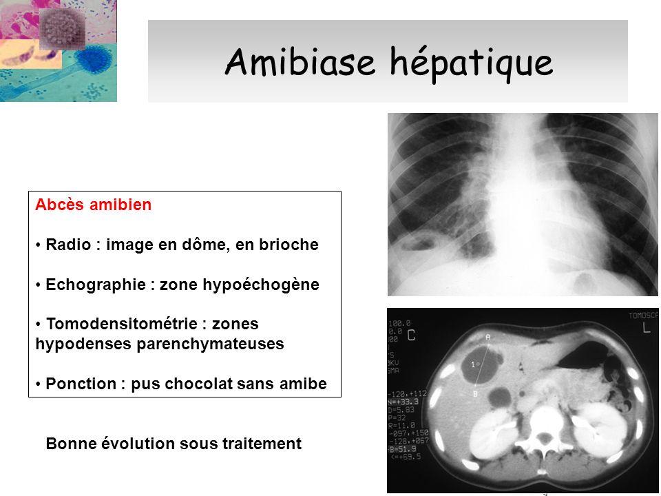 Amibiase hépatique Abcès amibien Radio : image en dôme, en brioche Echographie : zone hypoéchogène Tomodensitométrie : zones hypodenses parenchymateus