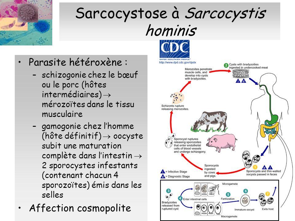 Sarcocystose à Sarcocystis hominis Clinique : asymptomatique sauf terrain fragilisé Diagnostic : présence de sporocystes dans les selles Traitement (dans les cas graves) : cf.