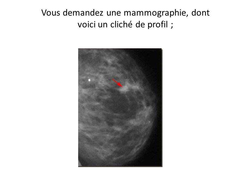 Vous demandez une mammographie, dont voici un cliché de profil ;