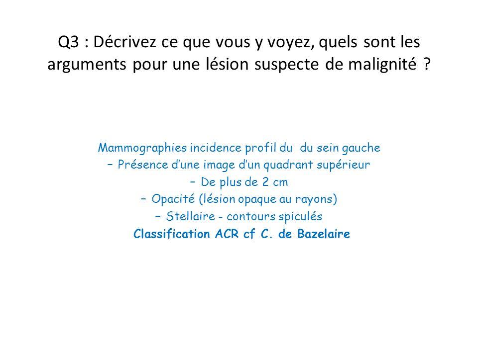 Q3 : Décrivez ce que vous y voyez, quels sont les arguments pour une lésion suspecte de malignité ? Mammographies incidence profil du du sein gauche –
