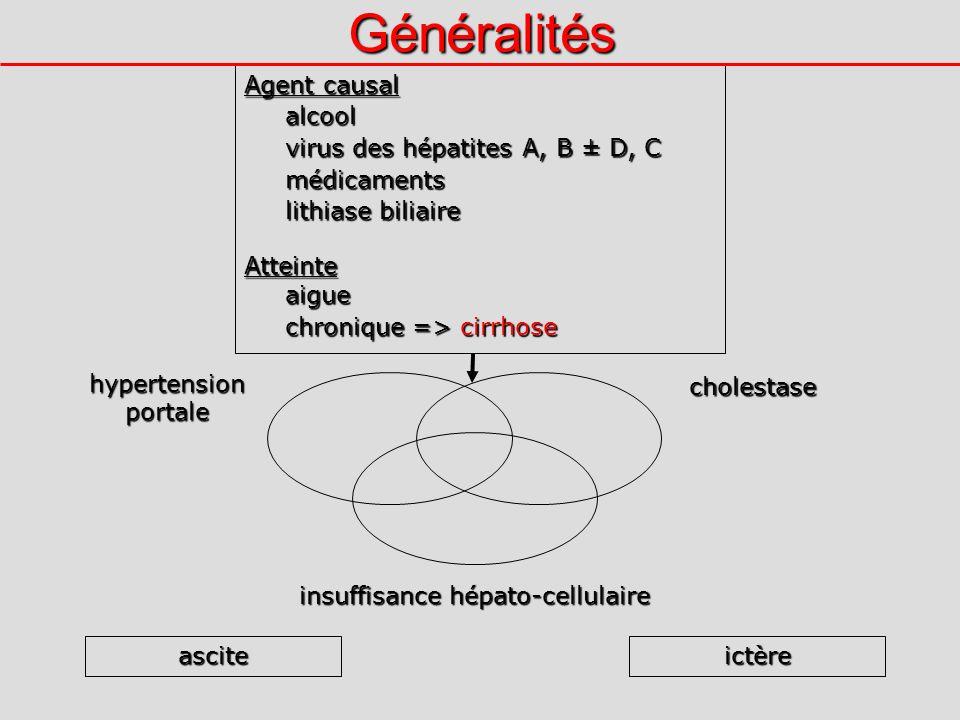 Généralités hypertension portale insuffisance hépato-cellulaire cholestase asciteictère Agent causal alcool virus des hépatites A, B ± D, C médicaments lithiase biliaire Atteinteaigue chronique => cirrhose