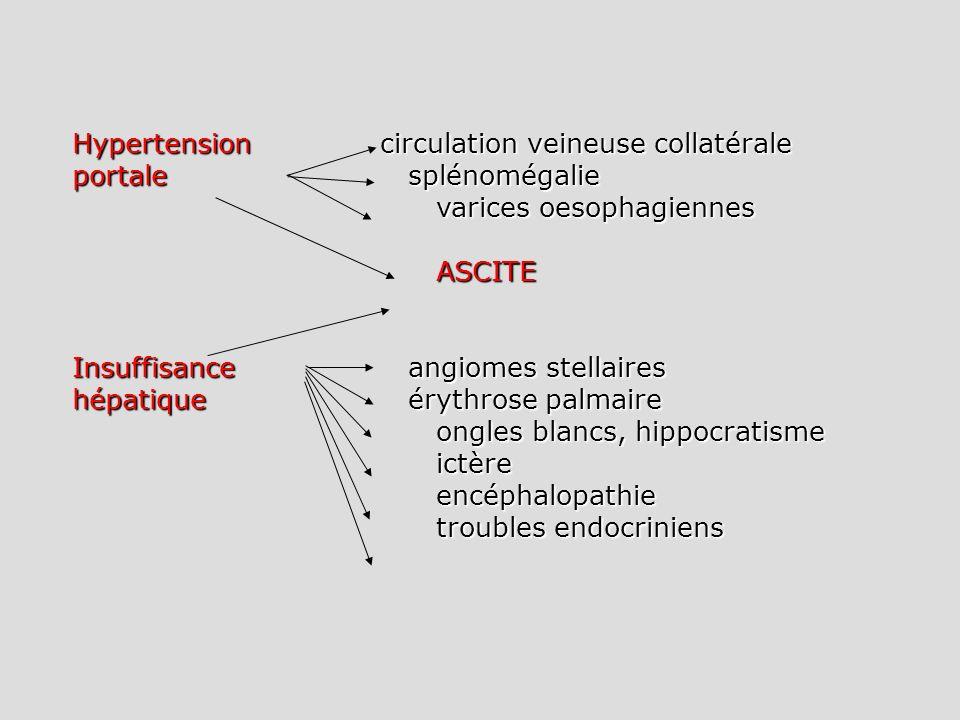 Hypertension circulation veineuse collatérale portale splénomégalie varices oesophagiennes ASCITE Insuffisance angiomes stellaires hépatiqueérythrose