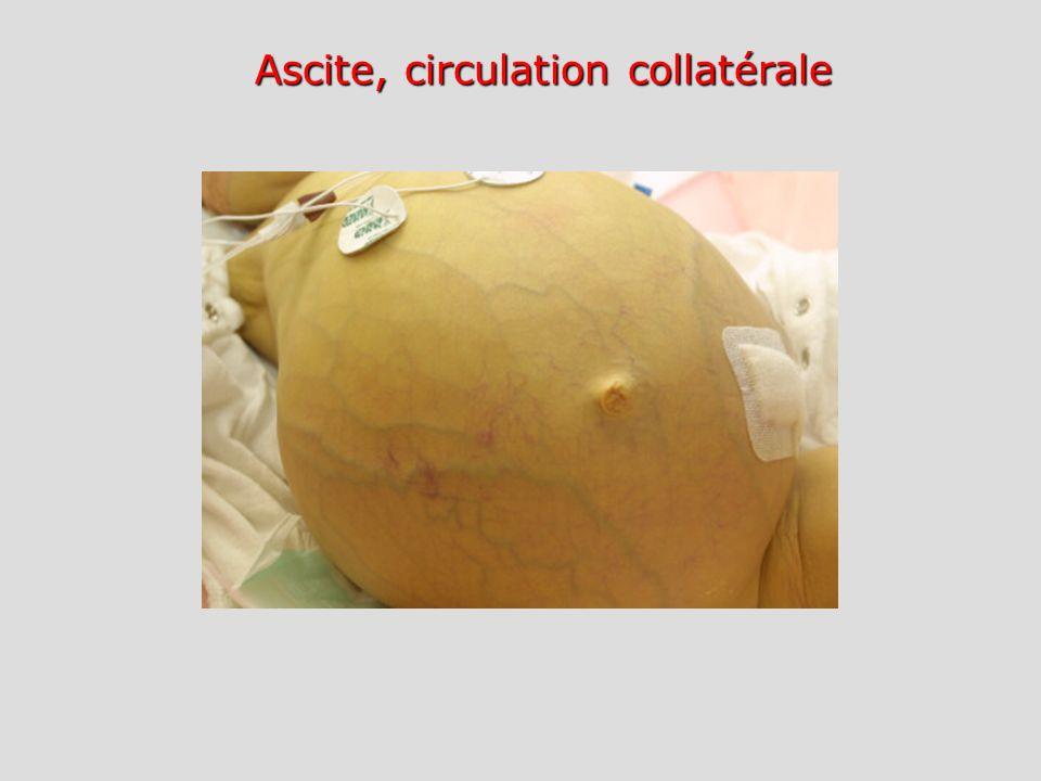 Ascite, circulation collatérale