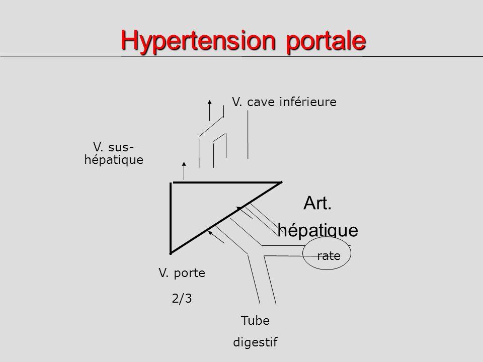 Hypertension portale Art. hépatique 1/3 V. porte 2/3 V. cave inférieure V. sus- hépatique rate Tube digestif