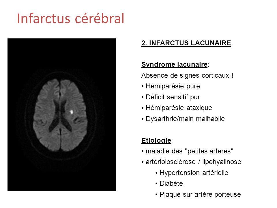 Infarctus cérébral 2.INFARCTUS LACUNAIRE Syndrome lacunaire: Absence de signes corticaux .
