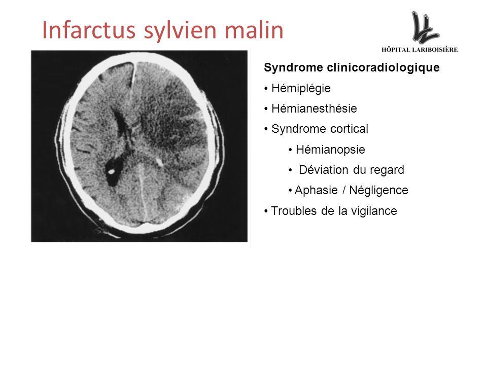 Infarctus sylvien malin Syndrome clinicoradiologique Hémiplégie Hémianesthésie Syndrome cortical Hémianopsie Déviation du regard Aphasie / Négligence Troubles de la vigilance