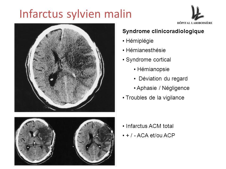 Infarctus sylvien malin Syndrome clinicoradiologique Hémiplégie Hémianesthésie Syndrome cortical Hémianopsie Déviation du regard Aphasie / Négligence Troubles de la vigilance Infarctus ACM total + / - ACA et/ou ACP