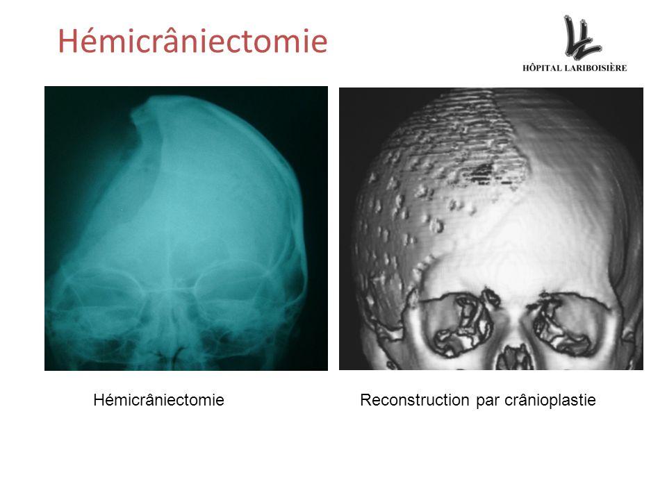 Hémicrâniectomie HémicrâniectomieReconstruction par crânioplastie