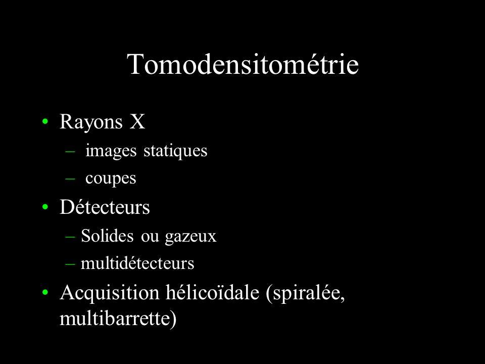 Flux artériel systolodiastolique Mesure des résistances artérielles Döppler B