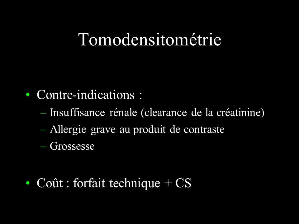 Tomodensitométrie Rayons X – images statiques – coupes Détecteurs –Solides ou gazeux –multidétecteurs Acquisition hélicoïdale (spiralée, multibarrette