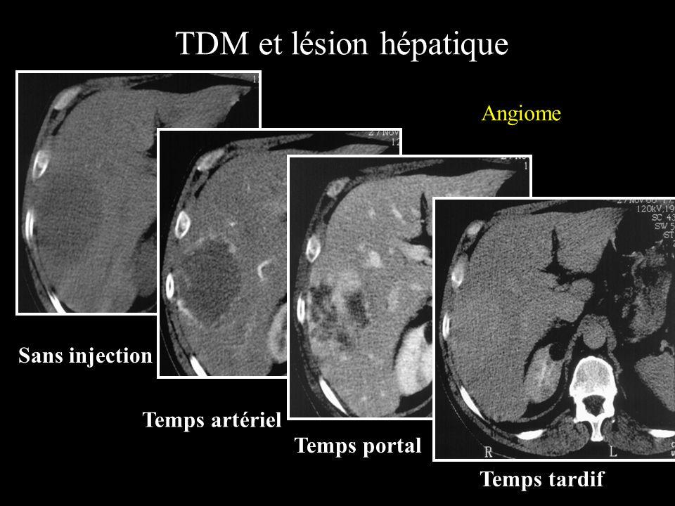 TDM et lésions pancréatiques Rehaussement au temps artériel après injection de produit de contraste iodé. Masse hyperdense de la tête du pancréas Mass