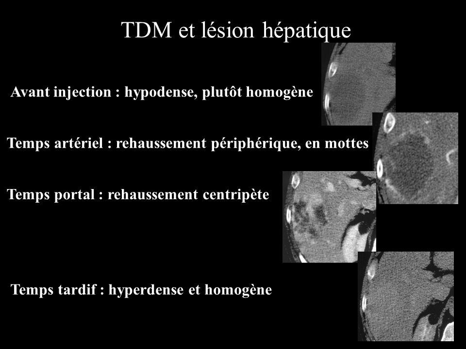 Sans injection Temps artériel Temps portal Temps tardif TDM et lésion hépatique Angiome