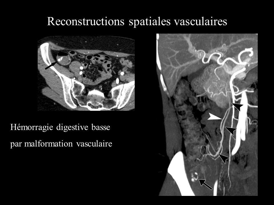 Reconstructions spatiales vasculaires 2D et 3D TDM et Vaisseaux