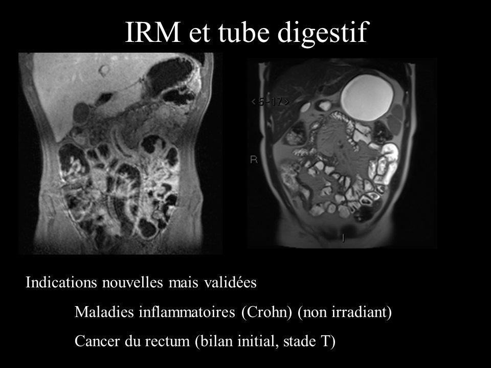 IRM et lésion hépatique En T2, aspect très spécifique : lésions homogènes, sans capsule, avec un hypersignal très intense (LCR) et des contours nets A