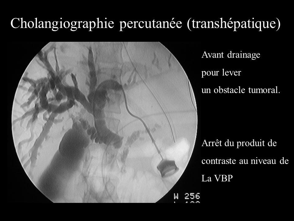 Opacification biliaire Complications : –Angiocholite –Hémorragie –Pancréatite aiguë (1% des cas) –Perforation Réservée à la thérapeutique