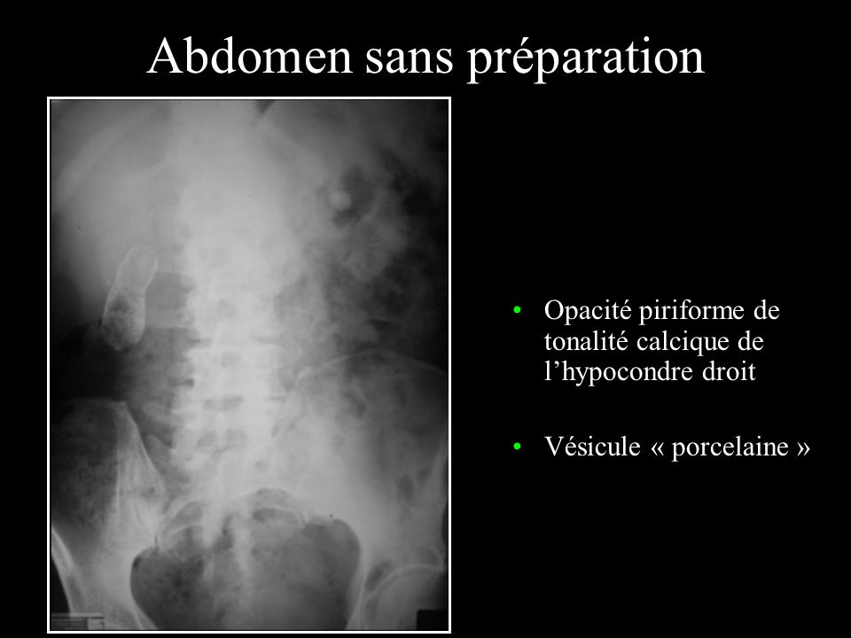 Echographie et voies biliaires Voie biliaire principale : < 7 mm Dilatation : –Obstacle / territoire –Bile/calcifications/air –(éventuelle étude des variantes)
