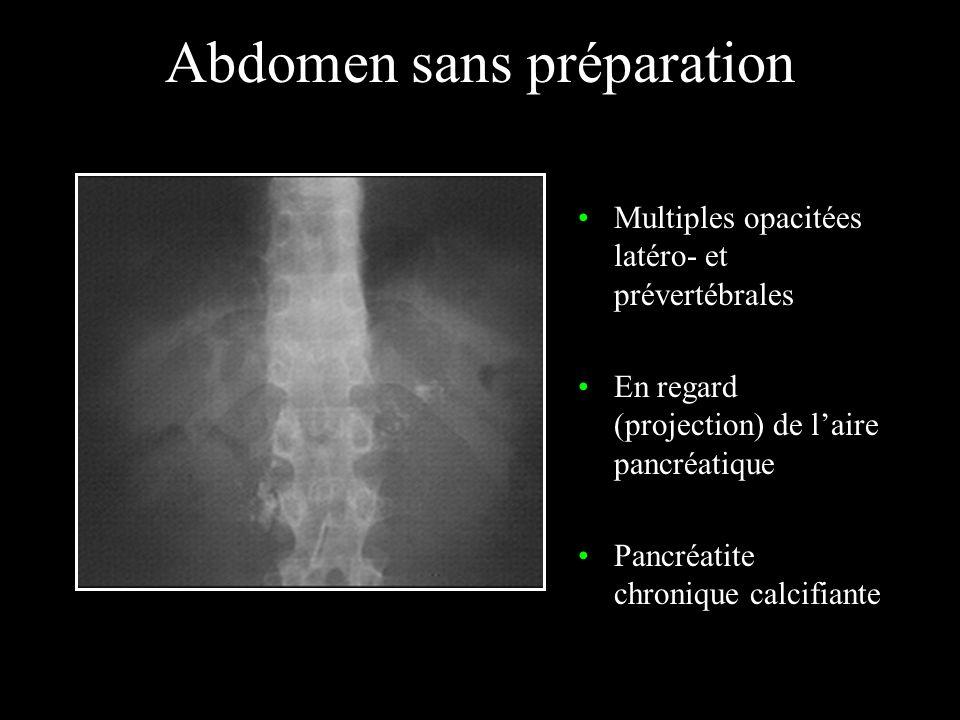 Abdomen sans préparation Opacité piriforme de tonalité calcique de lhypocondre droit Vésicule « porcelaine »