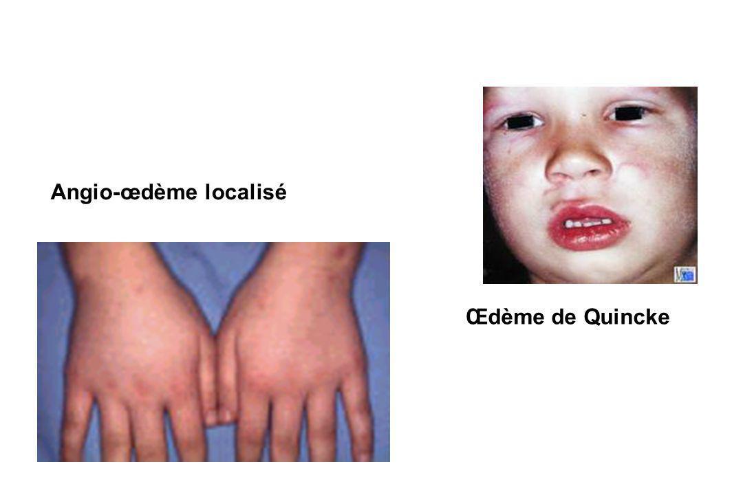 Angio-œdème localisé Œdème de Quincke