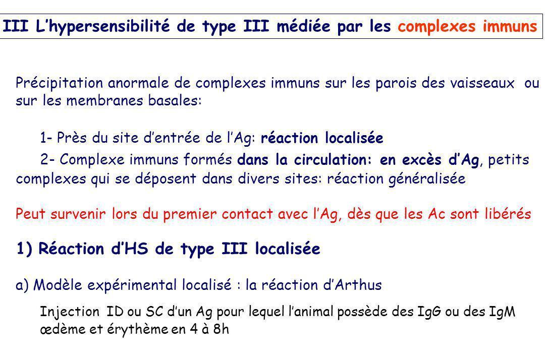 Précipitation anormale de complexes immuns sur les parois des vaisseaux ou sur les membranes basales: 1- Près du site dentrée de lAg: réaction localis