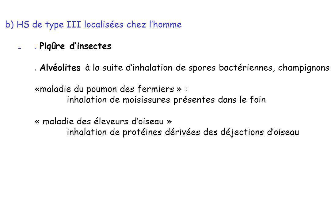 - b) HS de type III localisées chez lhomme. Piqûre dinsectes. Alvéolites à la suite dinhalation de spores bactériennes, champignons «maladie du poumon