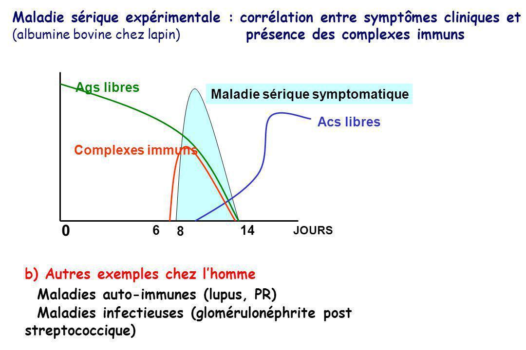 Maladie sérique expérimentale : corrélation entre symptômes cliniques et (albumine bovine chez lapin) présence des complexes immuns Ags libres Acs lib