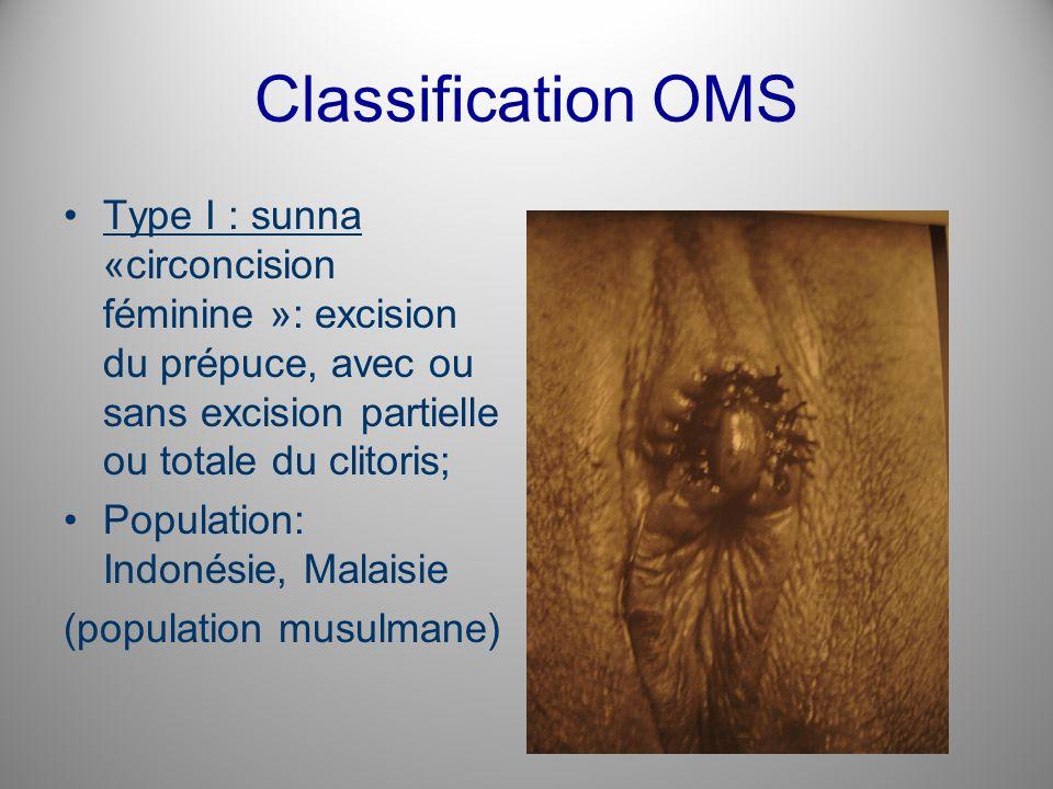 Classification OMS Type I : sunna «circoncision féminine »: excision du prépuce, avec ou sans excision partielle ou totale du clitoris; Population: In