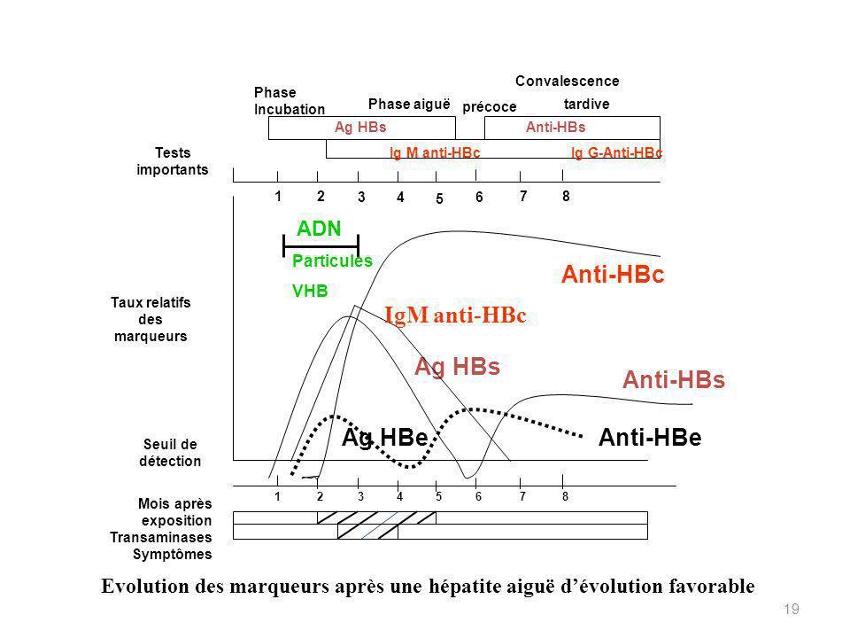 19 Ag HBe Mois après exposition Transaminases Symptômes 12345678 Seuil de détection Taux relatifs des marqueurs Ag HBs Anti-HBe Anti-HBs Anti-HBc 12 34 5 6 78 Tests importants ADN Particules VHB Ig M anti-HBcIg G-Anti-HBc Phase Incubation Phase aiguë précoce tardive Convalescence Ag HBsAnti-HBs Evolution des marqueurs après une hépatite aiguë dévolution favorable IgM anti-HBc
