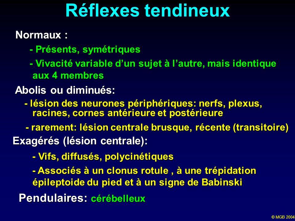© MGB 2004 Réflexes tendineux Normaux : Normaux : - Présents, symétriques - Présents, symétriques - Vivacité variable dun sujet à lautre, mais identiq