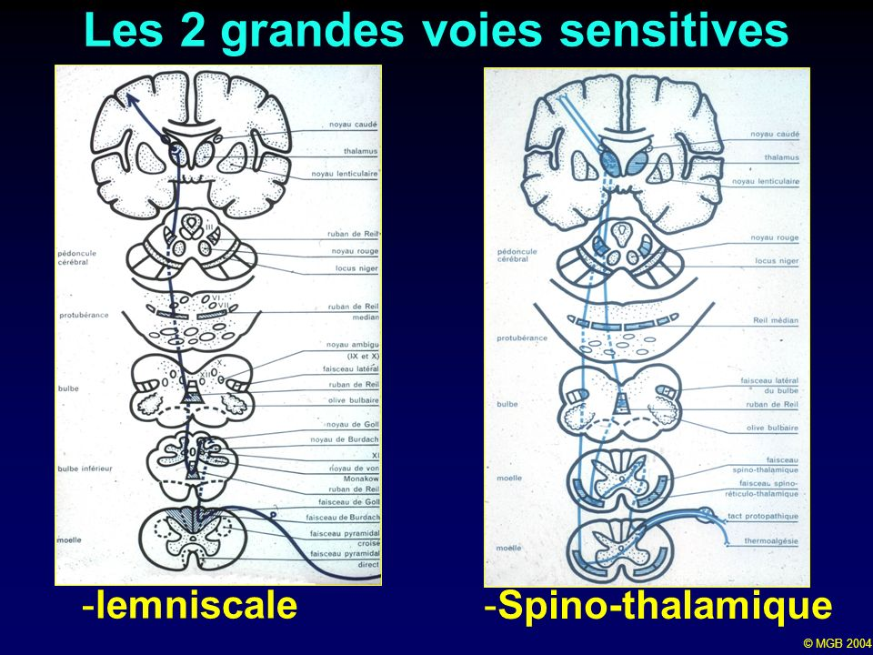 © MGB 2004 Les 2 grandes voies sensitives -lemniscale -Spino-thalamique