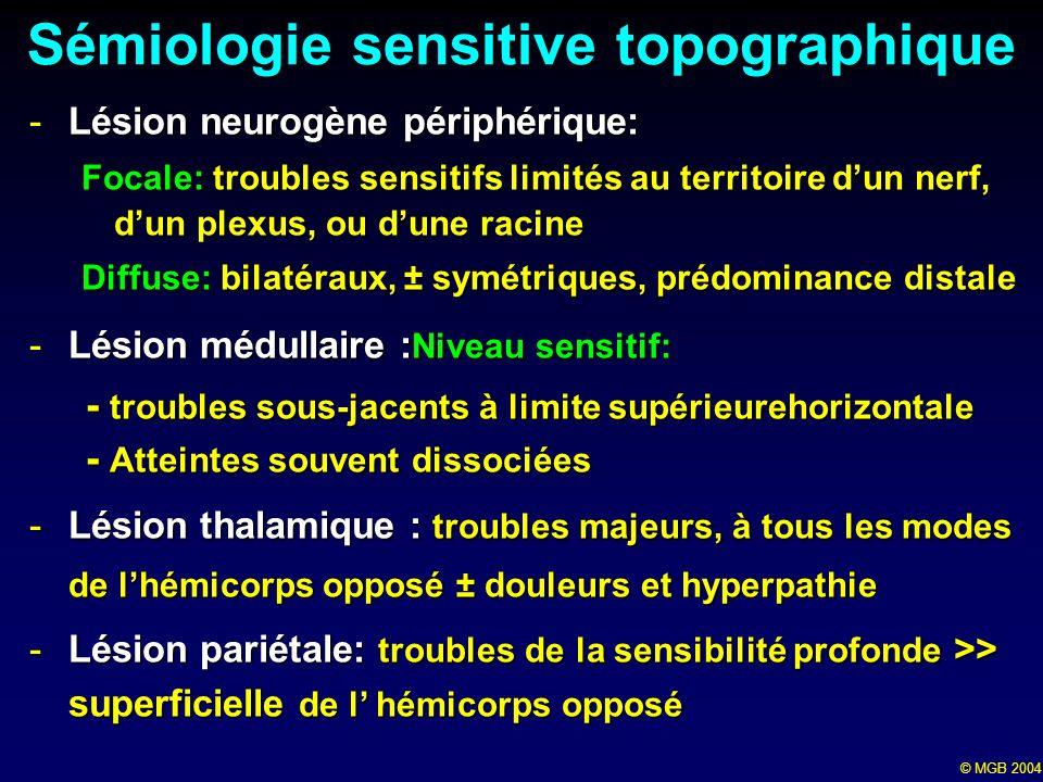 © MGB 2004 Sémiologie sensitive topographique -Lésion neurogène périphérique: Focale: troubles sensitifs limités au territoire dun nerf, dun plexus, o