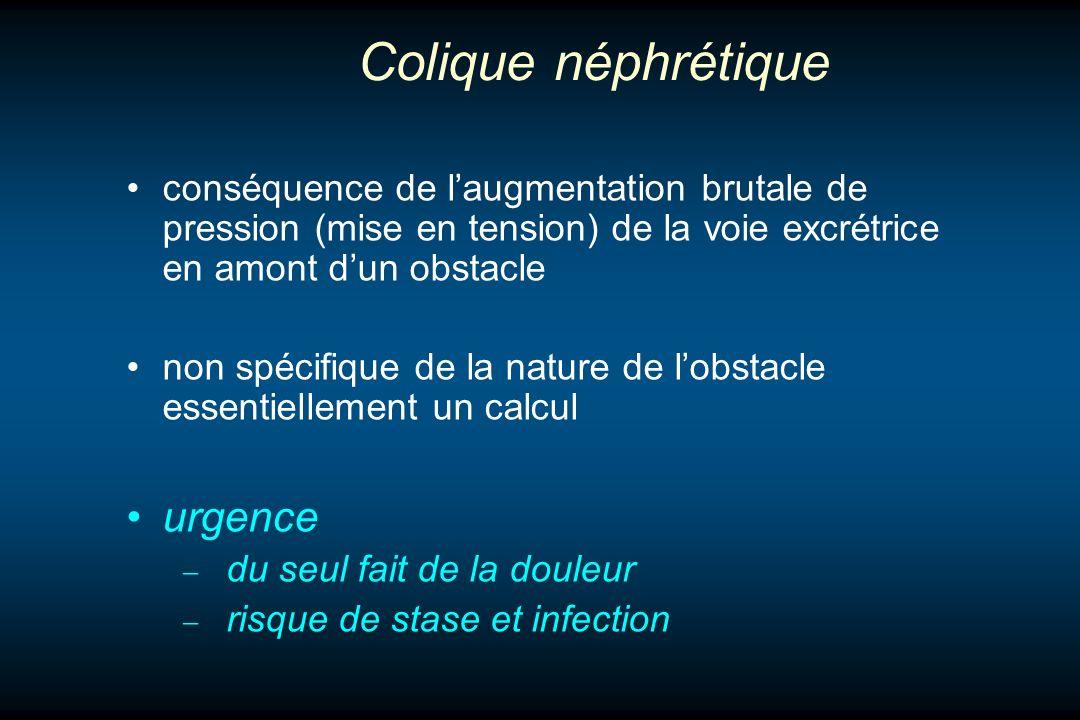 Colique néphrétique conséquence de laugmentation brutale de pression (mise en tension) de la voie excrétrice en amont dun obstacle non spécifique de l