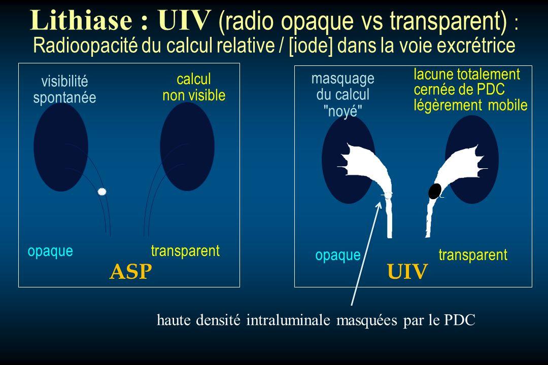 opaquetransparent ASPUIV haute densité intraluminale masquées par le PDC visibilité spontanée calcul non visible masquage du calcul