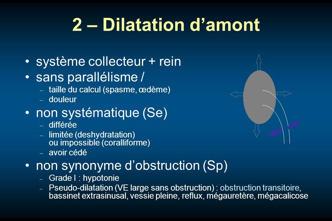 2 – Dilatation damont système collecteur + rein sans parallélisme / taille du calcul (spasme, œdème) douleur non systématique (Se) différée limitée (d