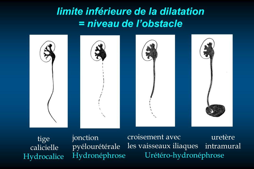 limite inférieure de la dilatation = niveau de lobstacle jonction pyélourétérale Hydronéphrose croisement avec les vaisseaux iliaques uretère intramur