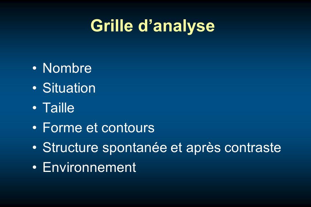 Grille danalyse Nombre Situation Taille Forme et contours Structure spontanée et après contraste Environnement