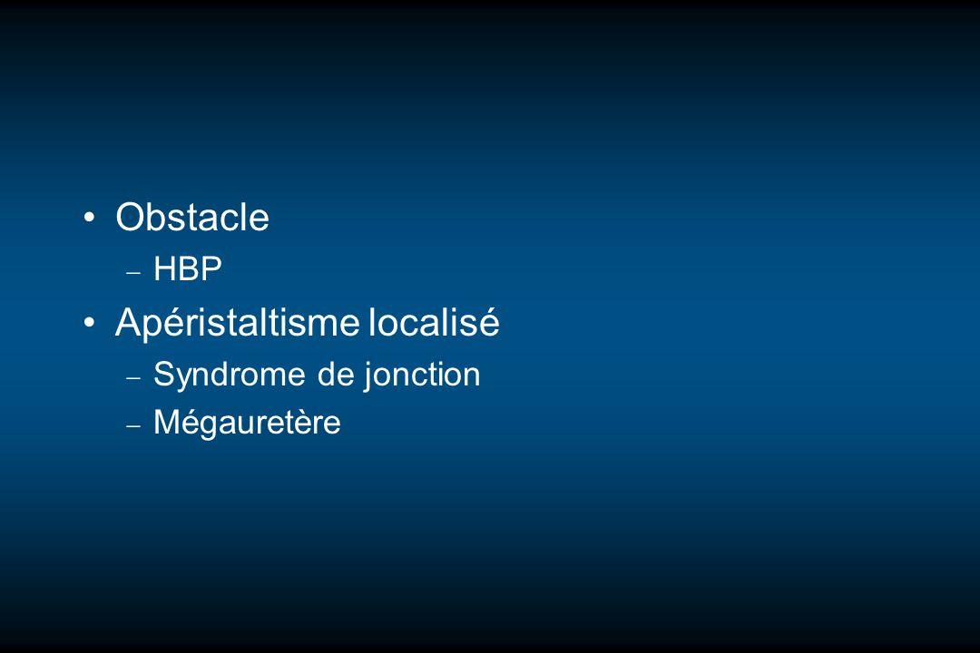 Obstacle HBP Apéristaltisme localisé Syndrome de jonction Mégauretère