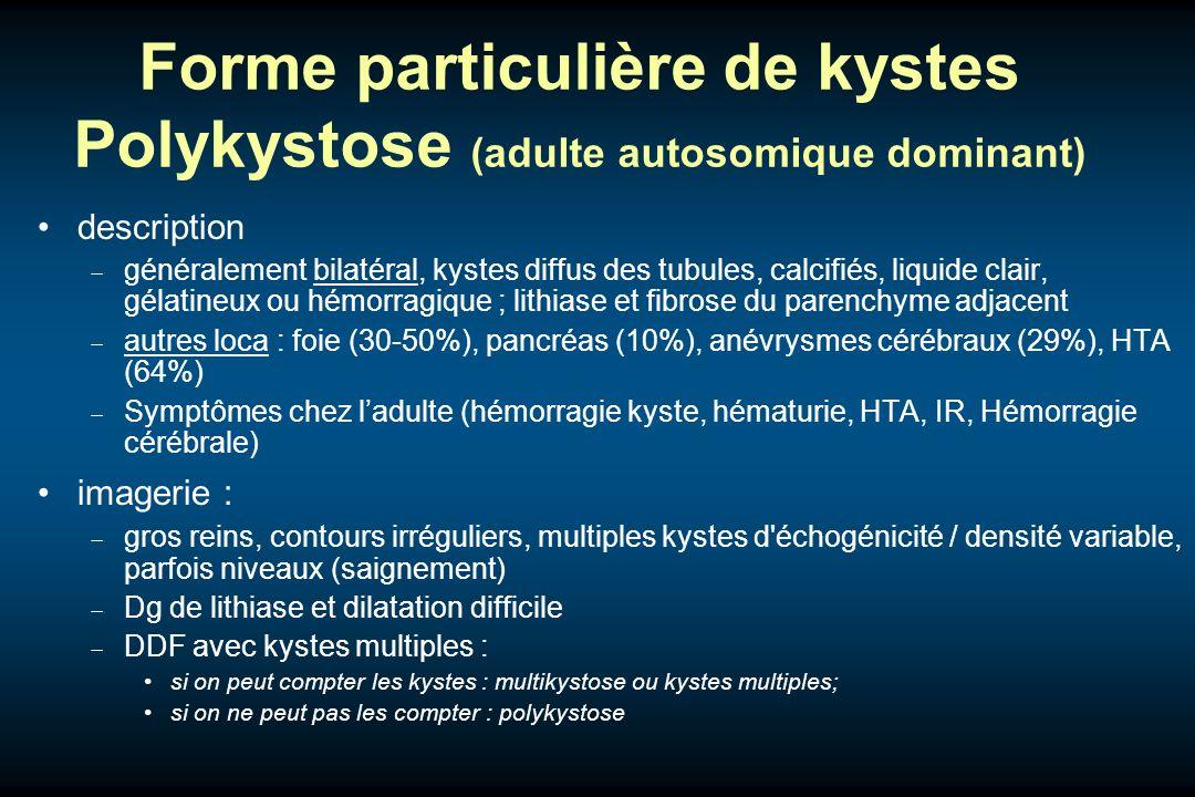 Forme particulière de kystes Polykystose (adulte autosomique dominant) description généralement bilatéral, kystes diffus des tubules, calcifiés, liqui
