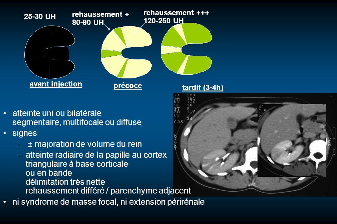 avant injection 25-30 UH rehaussement +++ 120-250 UH rehaussement + 80-90 UH précoce tardif (3-4h) atteinte uni ou bilatérale segmentaire, multifocale