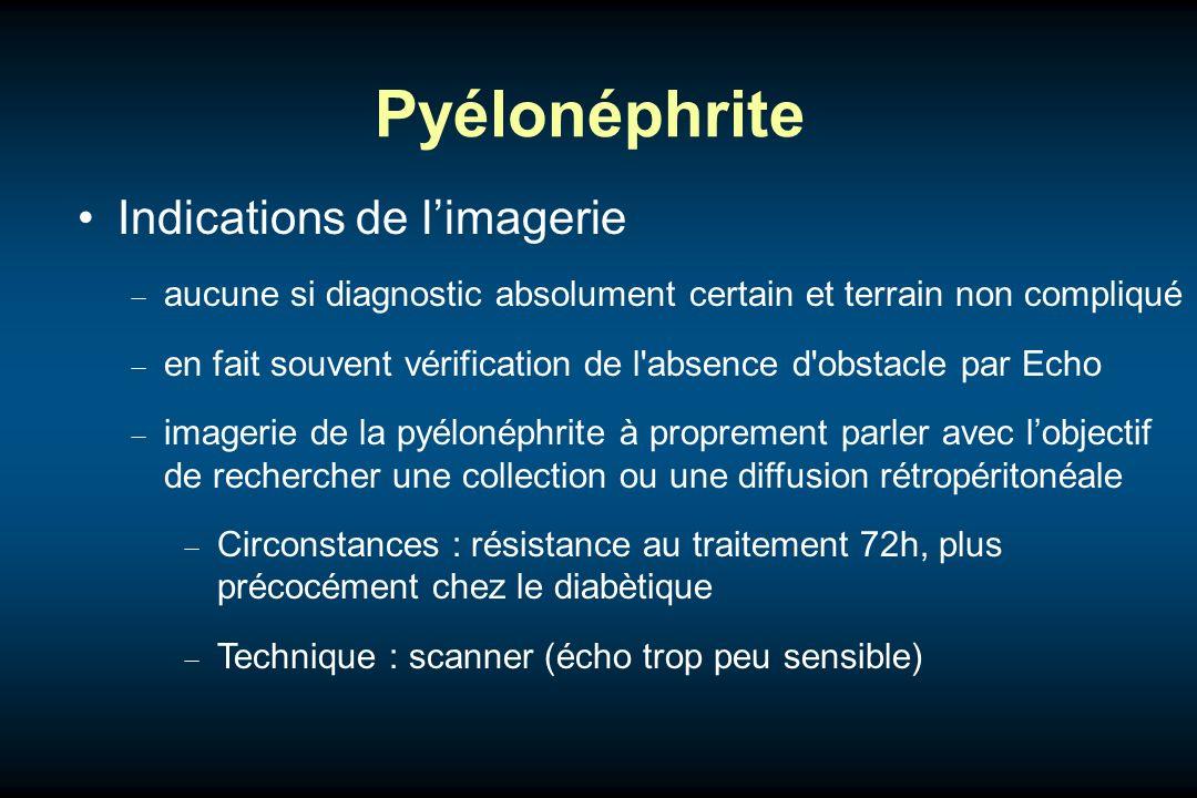 Pyélonéphrite Indications de limagerie aucune si diagnostic absolument certain et terrain non compliqué en fait souvent vérification de l'absence d'ob