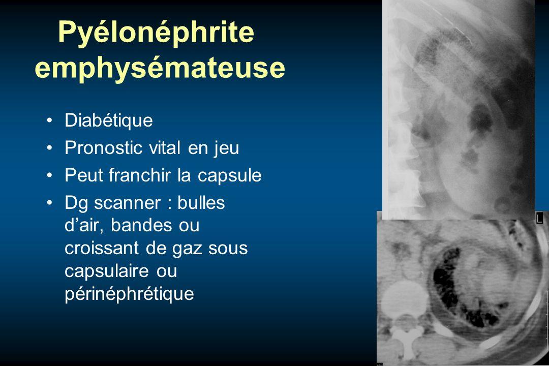 Pyélonéphrite emphysémateuse Diabétique Pronostic vital en jeu Peut franchir la capsule Dg scanner : bulles dair, bandes ou croissant de gaz sous caps