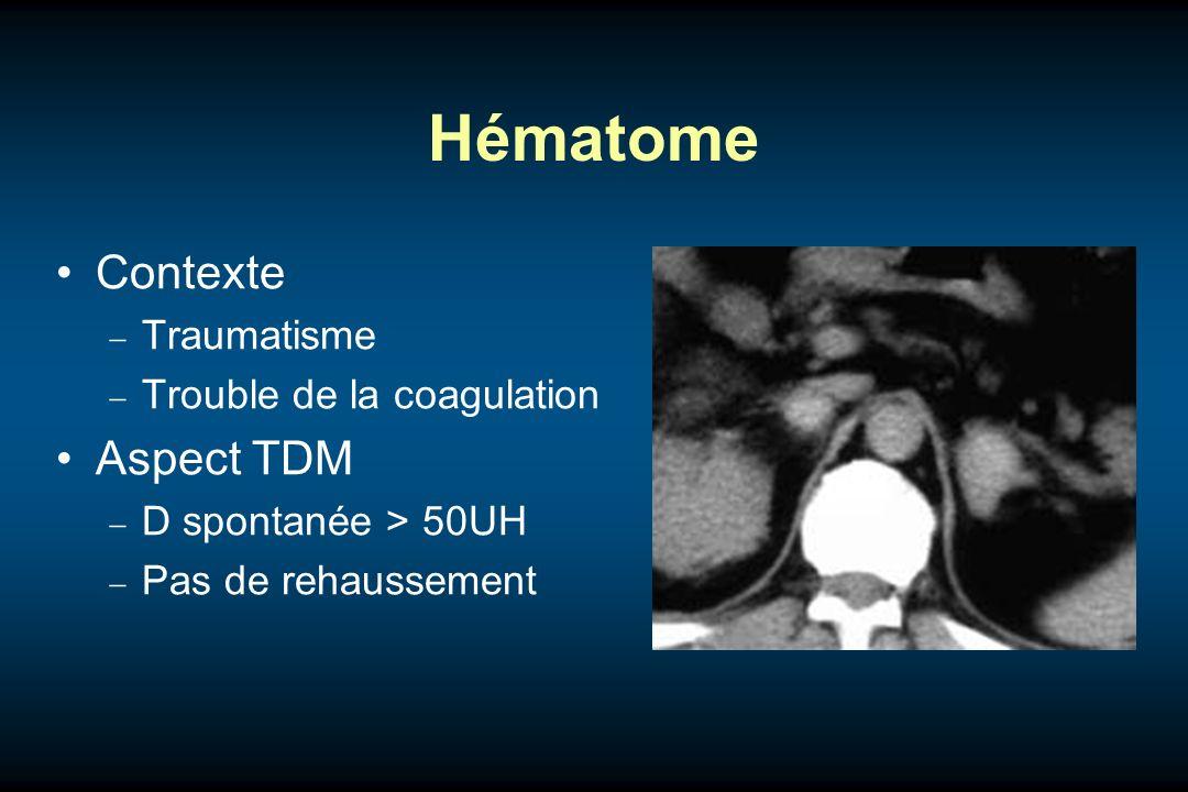 Hématome Contexte Traumatisme Trouble de la coagulation Aspect TDM D spontanée > 50UH Pas de rehaussement