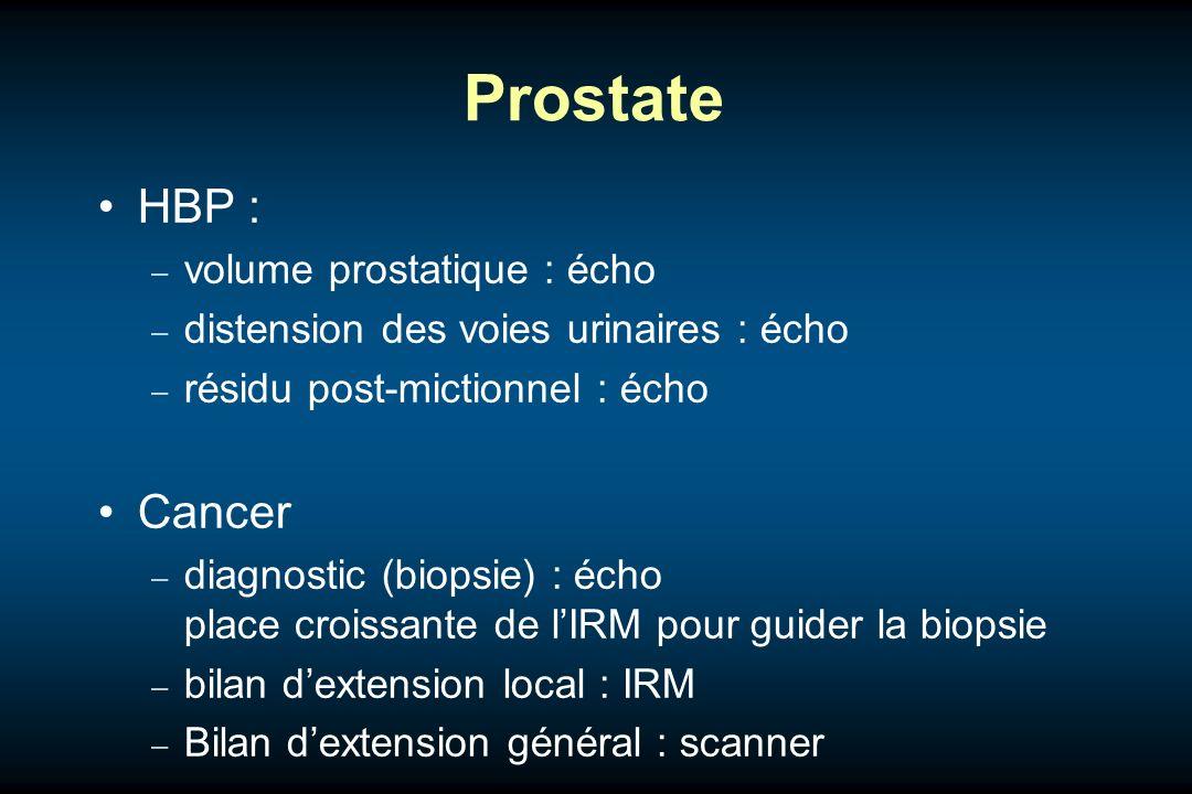 Prostate HBP : volume prostatique : écho distension des voies urinaires : écho résidu post-mictionnel : écho Cancer diagnostic (biopsie) : écho place