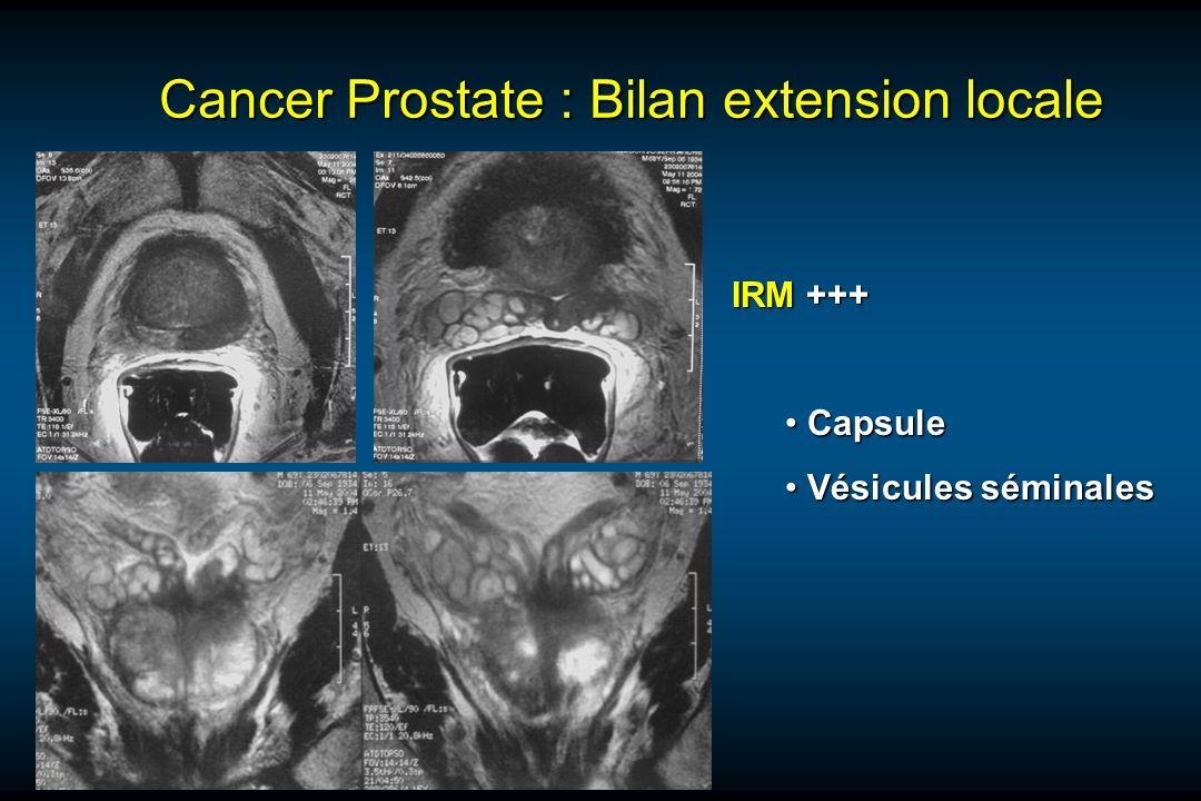 Cancer Prostate : Bilan extension locale IRM +++ Capsule Capsule Vésicules séminales Vésicules séminales